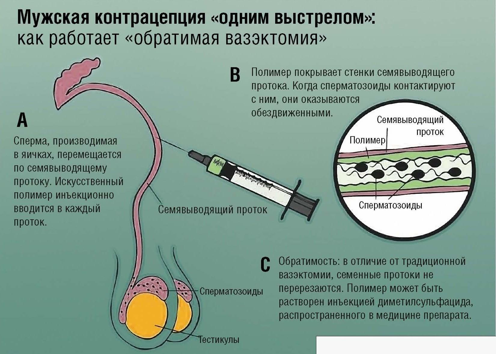Восстановление спермы